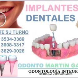 promo implantes 3